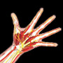 Ulnar Carpal Impaction