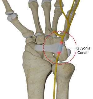 Ulnar Nerve Compression in Guyon's Canal